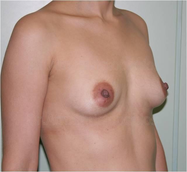 Before-Αυξητική στήθους