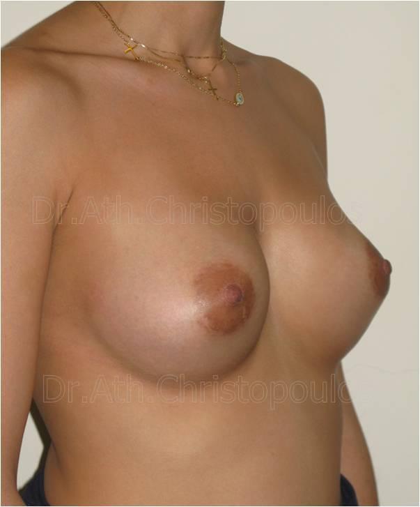 After-Αυξητική στήθους