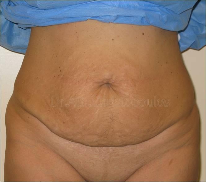Before-Κοιλιοπλαστική