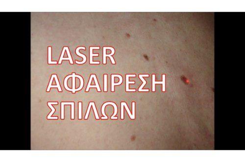 Αφαίρεση σπίλων / ελιών - Καλοήθεις όγκοι δέρματος