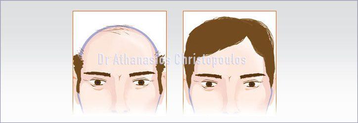 Μεταμόσχευση μαλλιών σε άνδρες