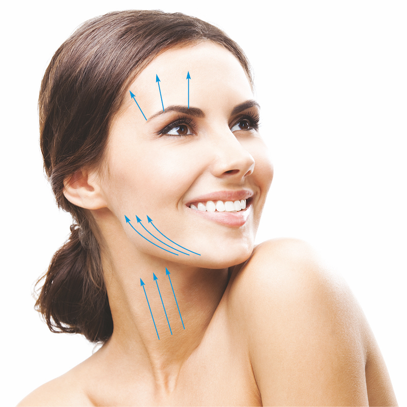 Facelift - polyfiber lifting