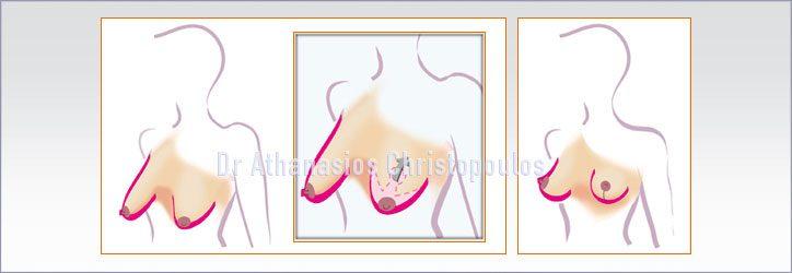 Ανόρθωση Στήθους / Μαστών