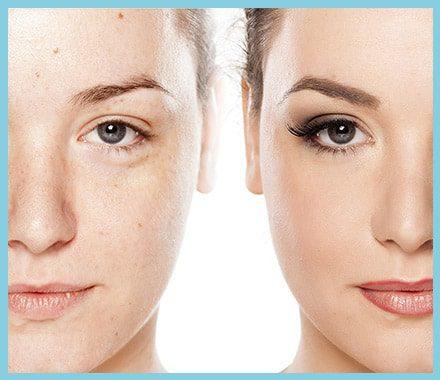 Δείτε φωτογραφίες πριν και μετά τις επεμβάσεις πλαστικής χειρουργικής