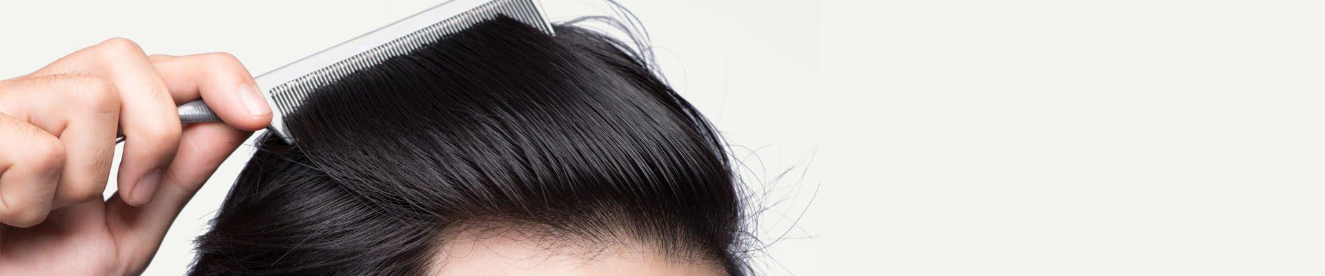 Μεταμόσχευση Μαλλιών (εμφύτευση)