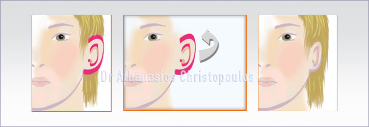 Ωτοπλαστική - Πλαστική Για Πεταχτά Αυτιά