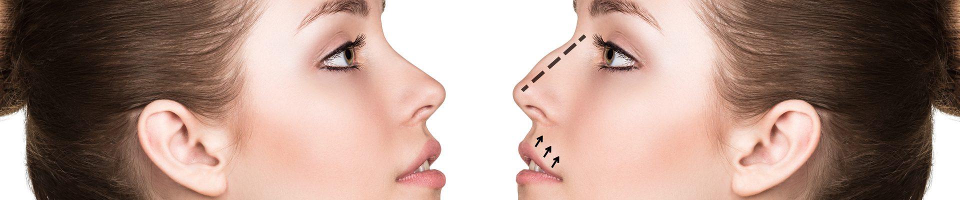 ρινοπλαστικη - πλαστικη στη μυτη rhinoplasty