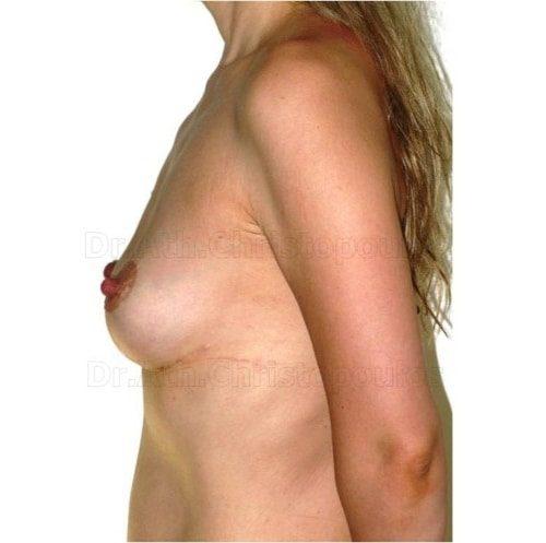 After-Ανόρθωση στήθους