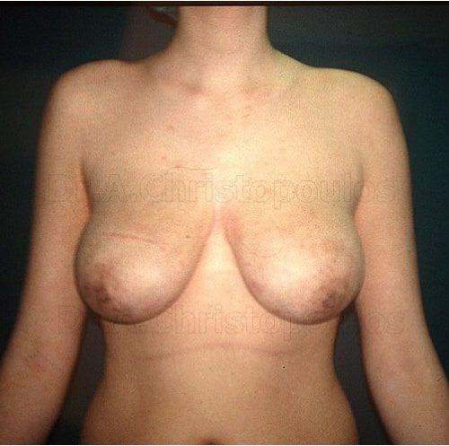 Before-Ανόρθωση στήθους