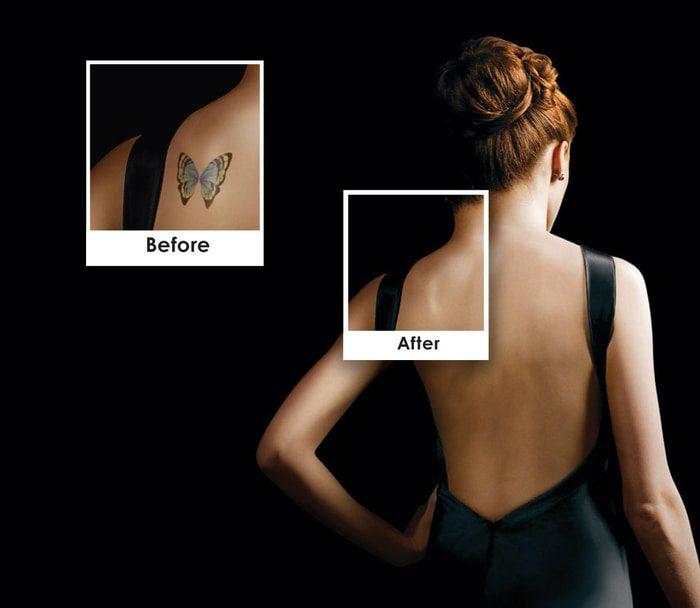 Αφαίρεση Tattoo