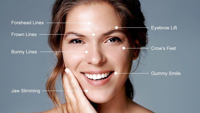 Botox - Μπότοξ σε μέτωπο και πρόσωπο