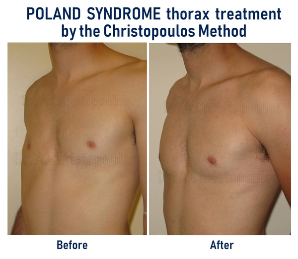 poland syndrome before after (dr christopoulos method